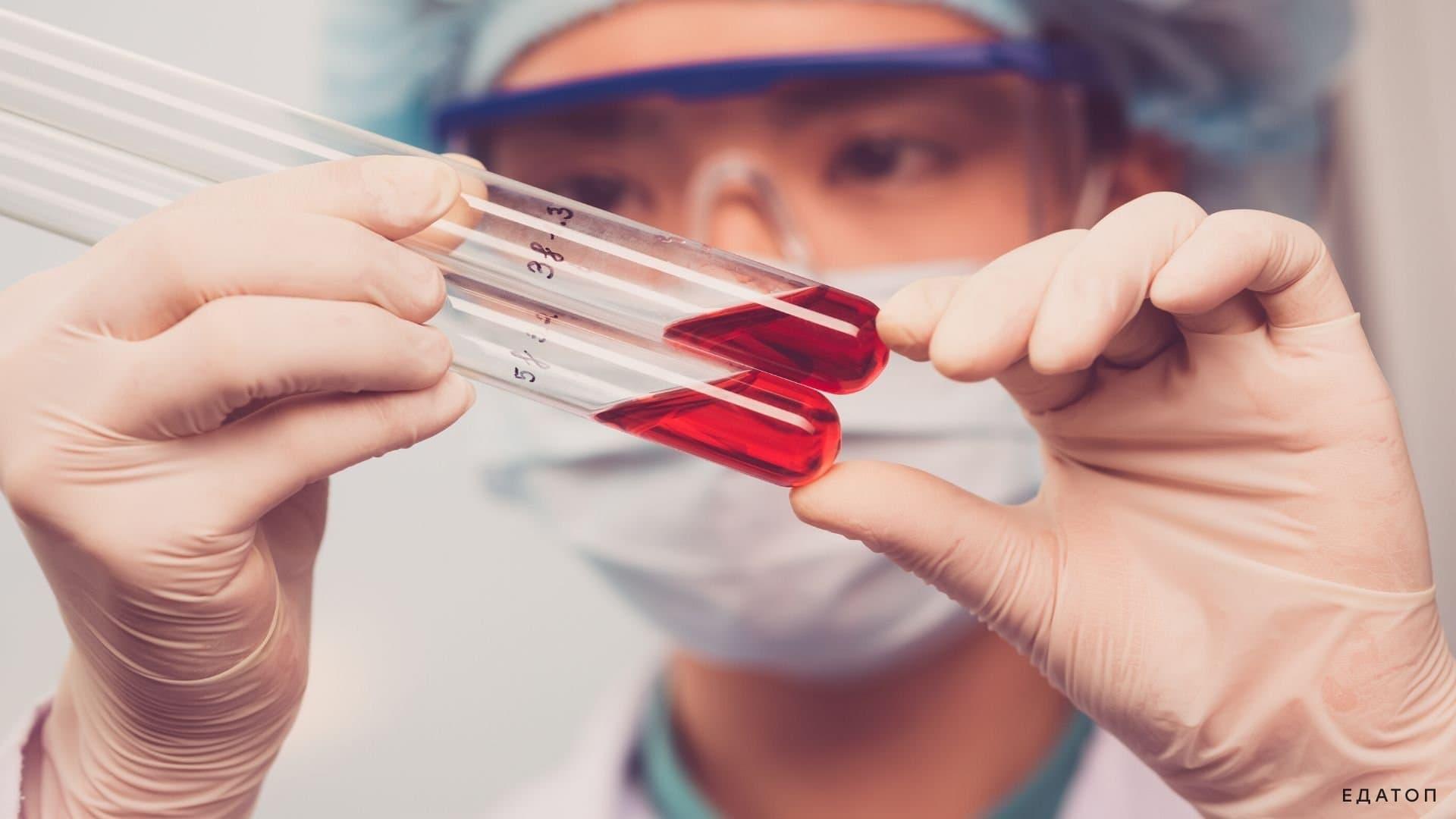 Уровень витамина Д в организме можно проверить с помощью анализа крови.