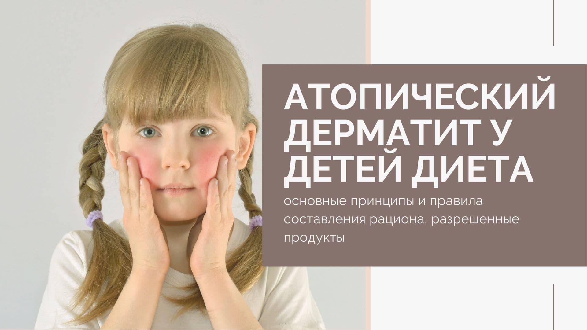 Диета при атопическом дерматите у детей: основные принципы и правила составления рациона, разрешенные продукты